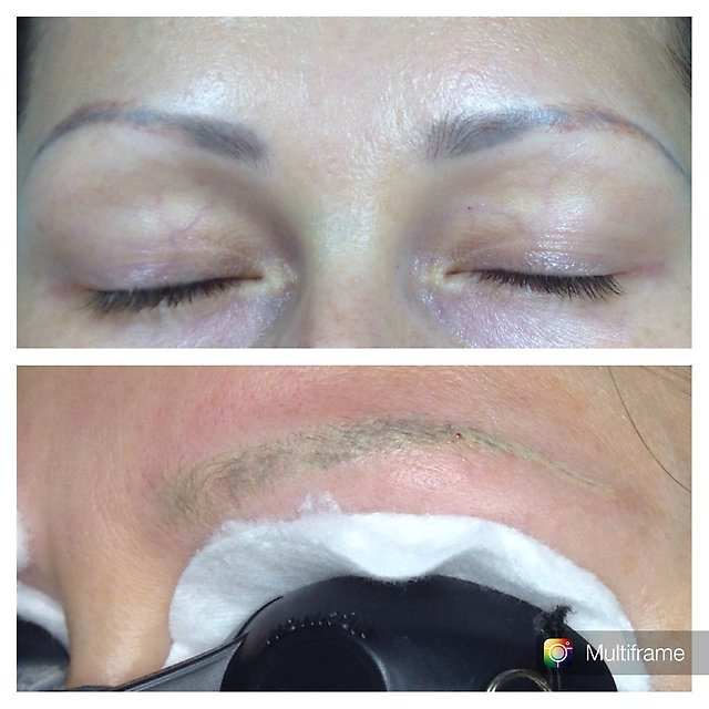 Laser Tattoo Removal Aftercare Instructions – Semi Permanent Makeup