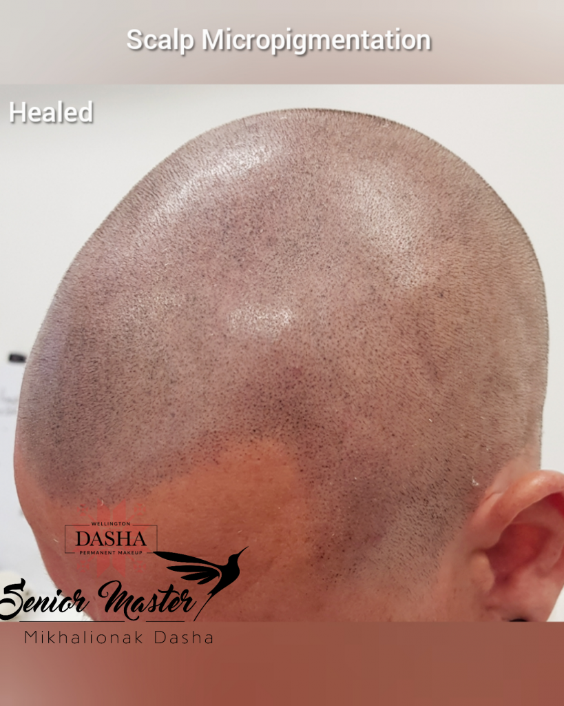 Healed, 6 month old Scalp Micropigmentation