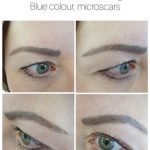 Cover up of blue Microblading